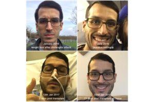Transplant tips
