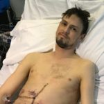 Nathan after transplant