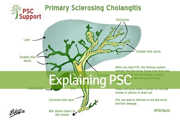 Explaining PSC chapter