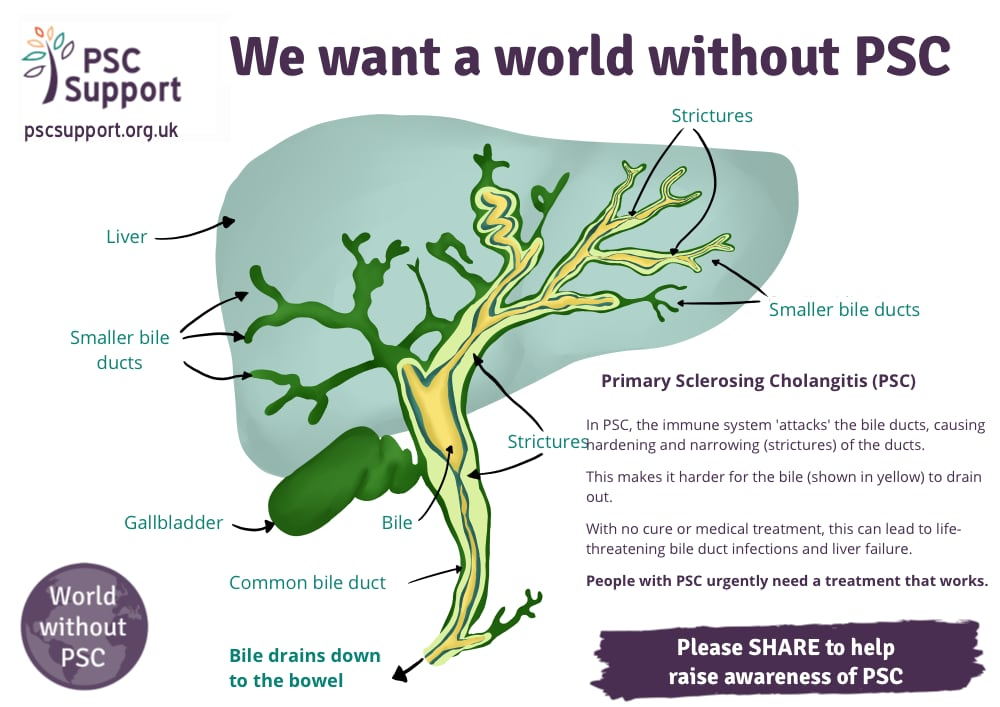 PSC Infographic Explaining PSC feb 2021 medium@0.5x