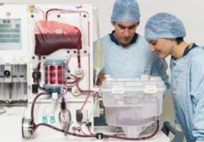 Machine perfusion